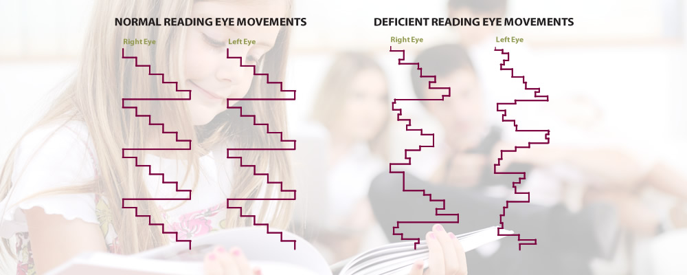 Poor eye tracking skill can make reading and learning difficult Advanced vision Therapy Center Boise Idaho